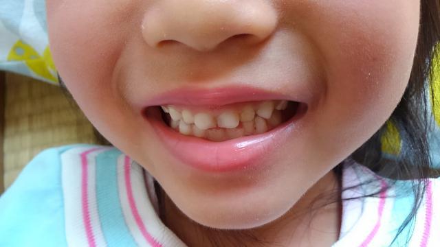 children-front-teeth.jpg